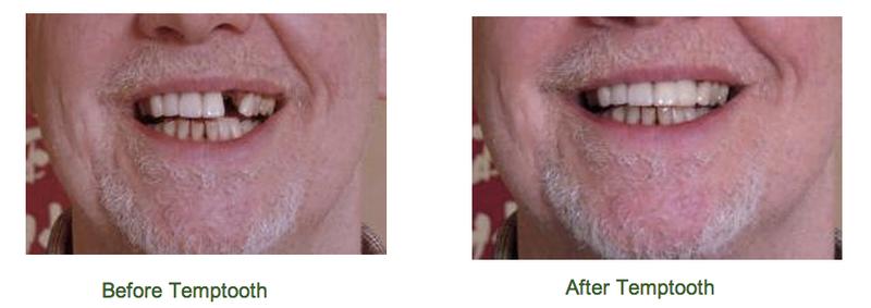 Illustration for article titled Olcsóbb lehet a szociális fogorvos, ha magunk csináljuk a fogpótlást