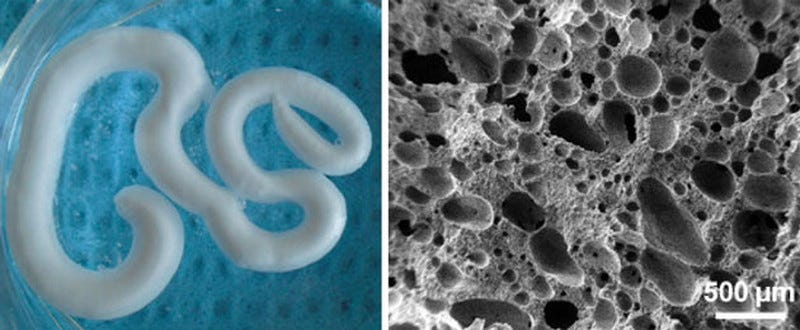 Scientists Create Injectable Foam To Repair Degenerating Bones