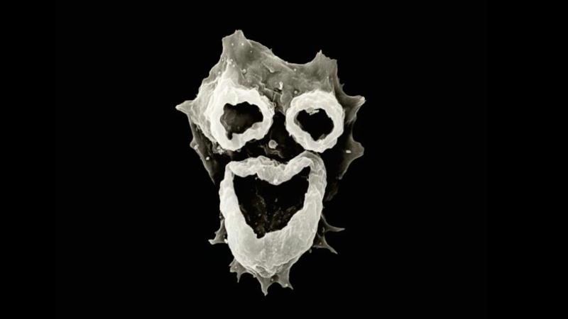 A trio of feeding structures on N. fowleri resembles a haunting, grimacing face. (Image by D.T. John & T.B. Cole, Visuals Unlimited)