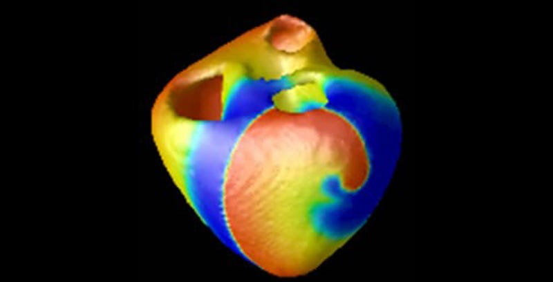 Illustration for article titled In the Future, a Virtual Heart May Test Your Medical Device For You