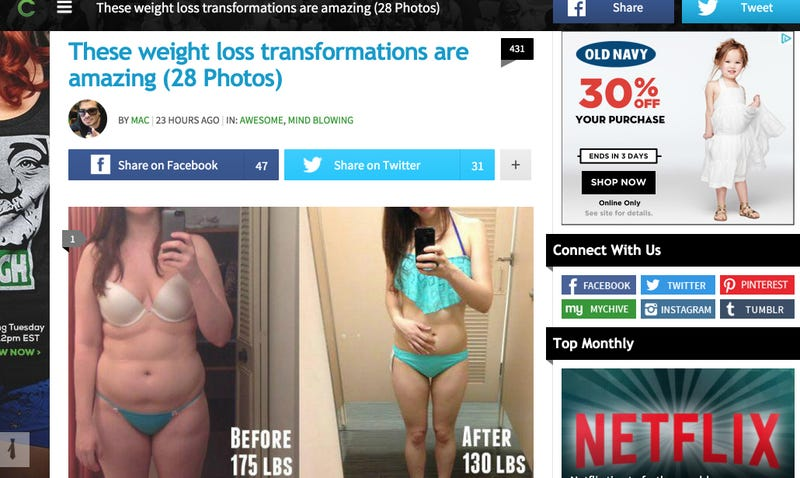 Illustration for article titled Site Uses Pic of Woman with Anorexia in 'Amazing' Weight Loss Post