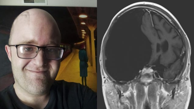 What It s Like to Live With a Giant Brain Cyst