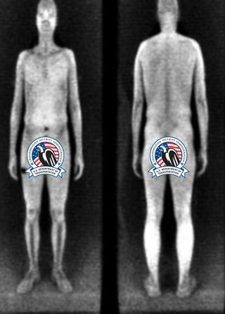 Illustration for article titled Pilot Who Refused Full-Body Scan Railed Against TSA For Months