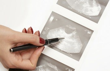Illustration for article titled Ovarian Cancer Screenings Not So Effective In Saving Lives
