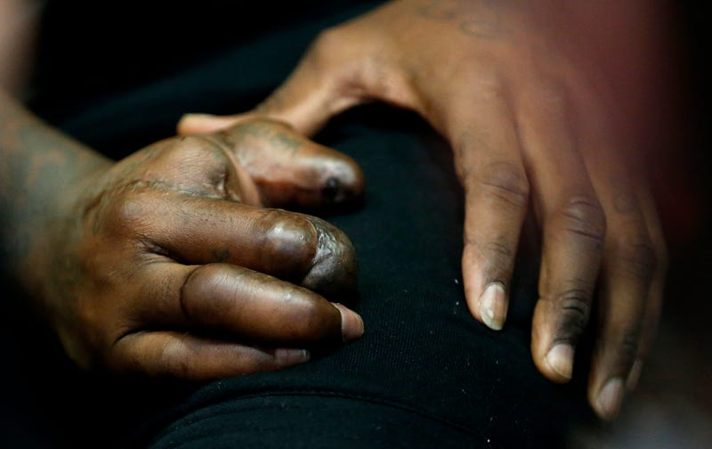 Illustration for article titled Take Your First Good Look At Jason Pierre-Paul's Mangled Hand
