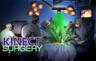 Illustration for article titled Kinect Hacked To Perform Surgery