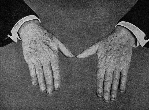 This Photo of Thomas Edison's Hands Was Clickbait in 1919