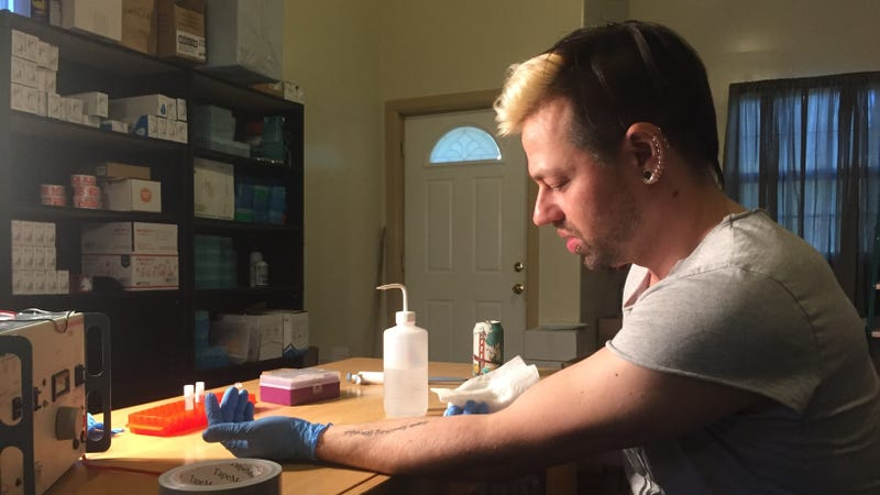 Biohacker Josiah Zayner in the midst of an experiment on himself. Image: Kristen V. Brown/Gizmodo