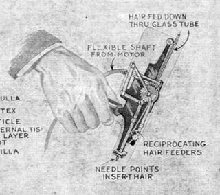 Illustration for article titled The First Hair Plug Machine Looks Absolutely Horrifying