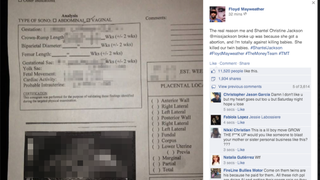 Illustration for article titled Floyd Mayweather Posts Ex's Sonogram, Accuses Her of 'Killing Babies'