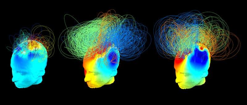 Esta nueva técnica determina si una persona está realmente inconsciente