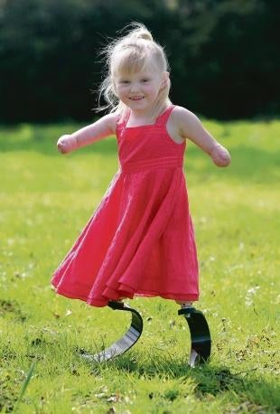 Illustration for article titled 5-Year-Old Amputee Fitted with High Performance Carbon Fiber Legs