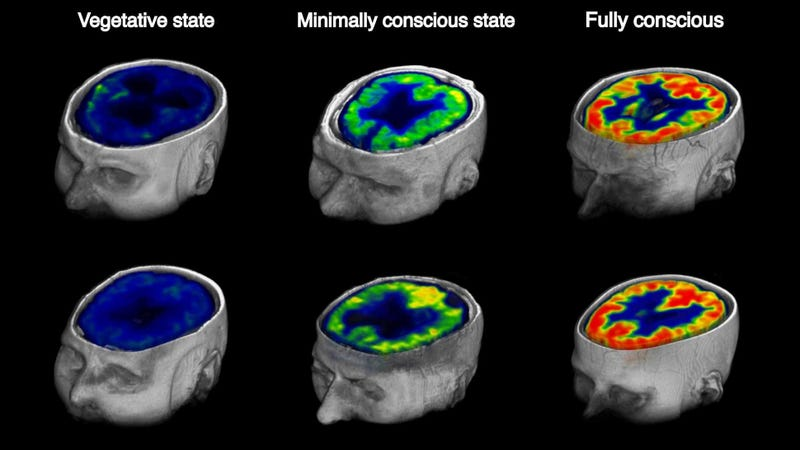 Glucose metabolism in the brain in patients with chronic disorders of unconsciousness. (Image: Stender et al., 2016)