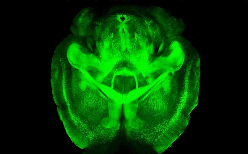 Illustration for article titled Utilizan tecnología espacial para intentar detectar el Alzheimer