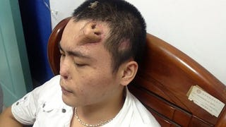 Illustration for article titled Doctors in China grow a new nose for a man... on his forehead.