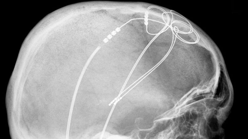 An x-ray image of someone who had electrodes implanted into their brain to manage their Parkinson's disease.
