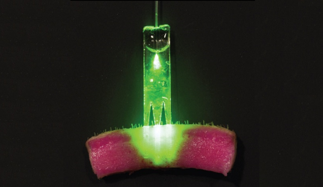 Someday, Suturing a Wound Will Involve Lasers