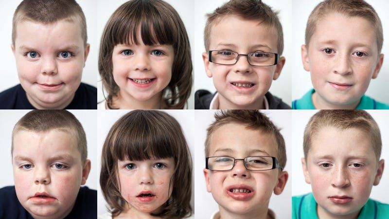 Illustration for article titled Before and After Kids' Portraits Show the Effects of Oral Surgery