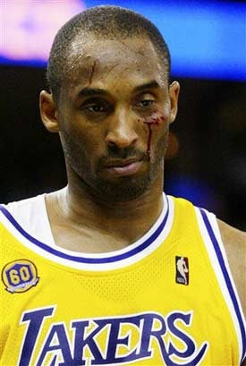 Illustration for article titled Kobe Cries Tears Of Blood, Lakers Win