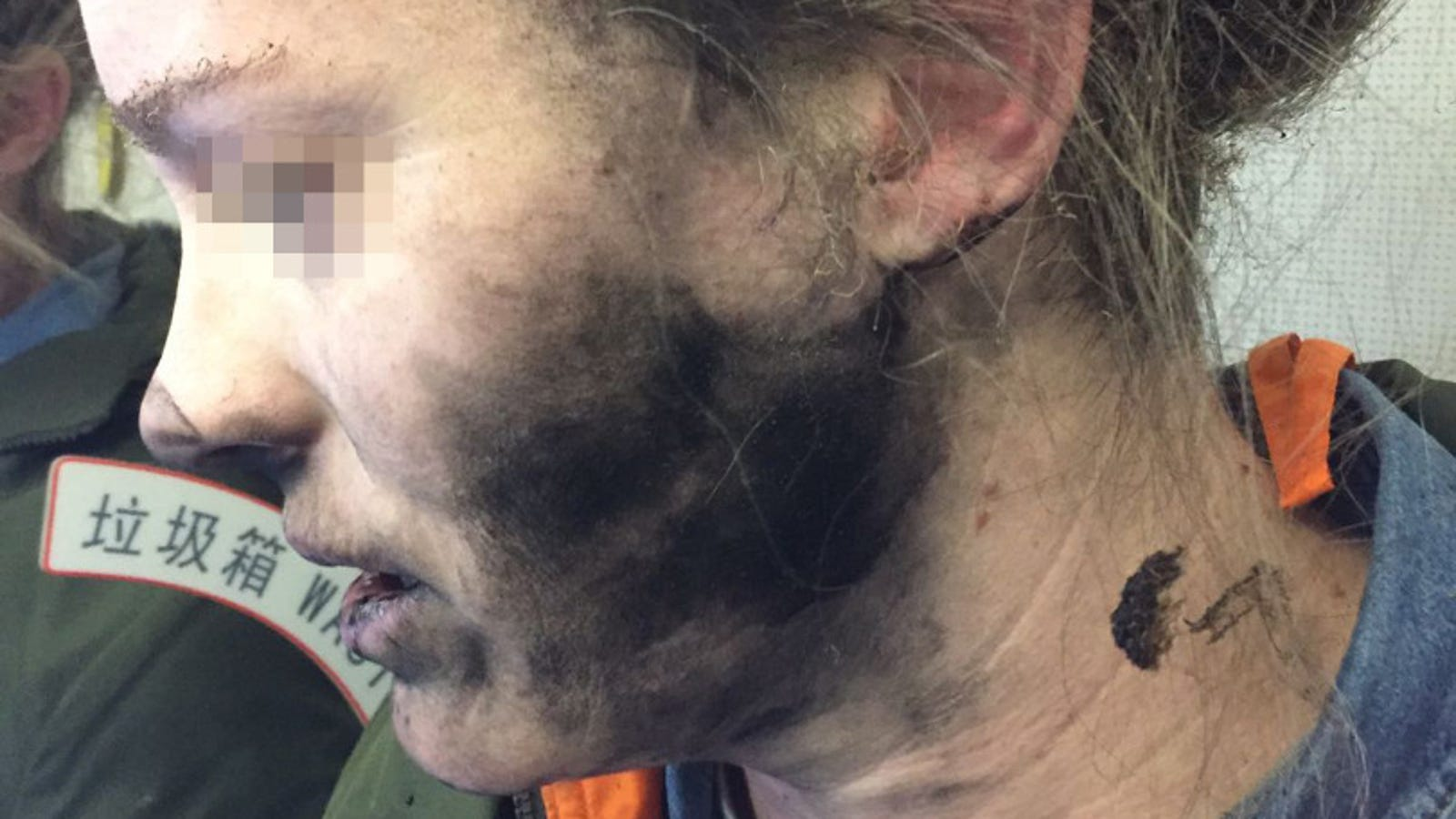 bose wireless headphones around ear - This Is What Happens When Your Headphones Explode on an Airplane [GRAPHIC]