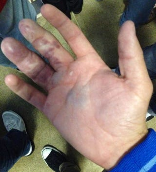 Illustration for article titled This Is What Happens When You Try To Bare-Hand A Giancarlo Stanton Homer [Update]