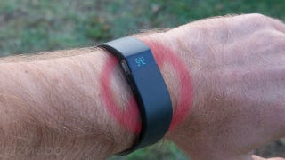 Illustration for article titled Fitbit retira su pulsera Force por causar irritaciones en la piel