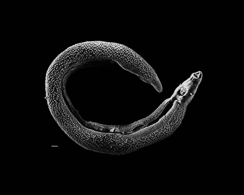 Illustration for article titled What A Prehistoric Parasite Reveals About Humans And Disease