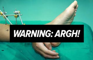 Illustration for article titled Amazing photo of severed hand surgically attached to an ankle