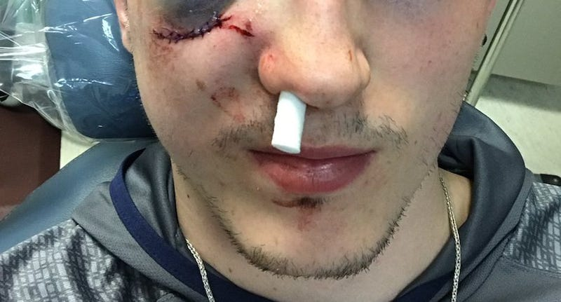 Illustration for article titled Zach Werenski's Face Is Really Fucked Up