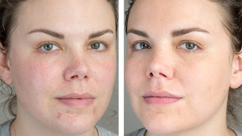 The Best Way to Conceal Dark Spots and Blemishes