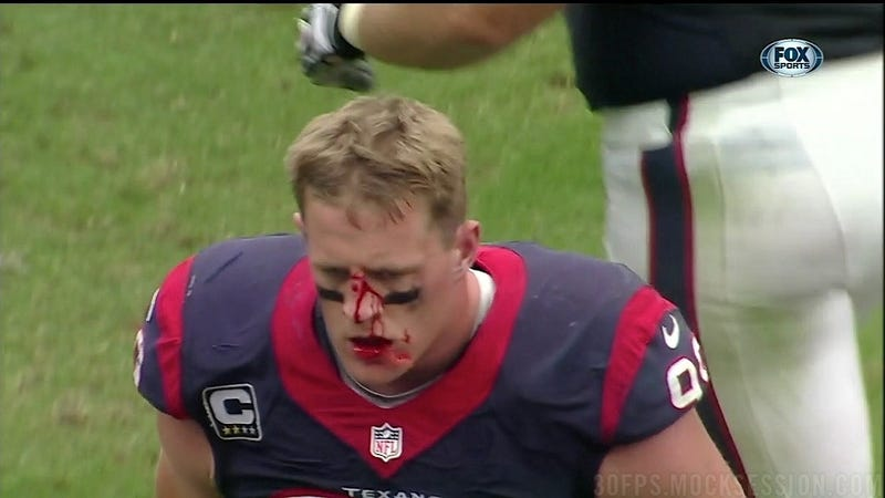 Illustration for article titled J.J. Watt Is Very Bloody And Very Angry