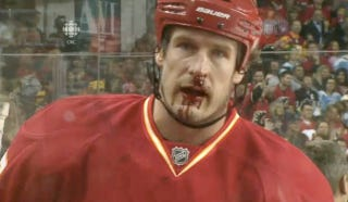 Illustration for article titled Here's Your First Bloodied-Face Picture Of The New NHL Season
