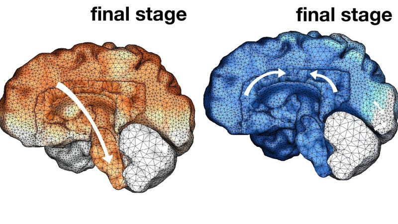 The final stages of amyloid beta (orange) and tau (blue) progression in someone with Alzheimer's.