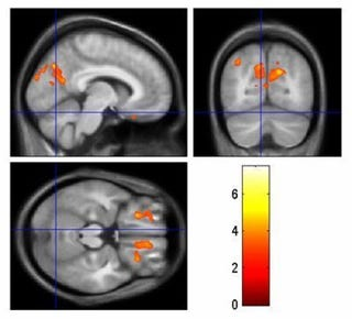 Tourettes Brain
