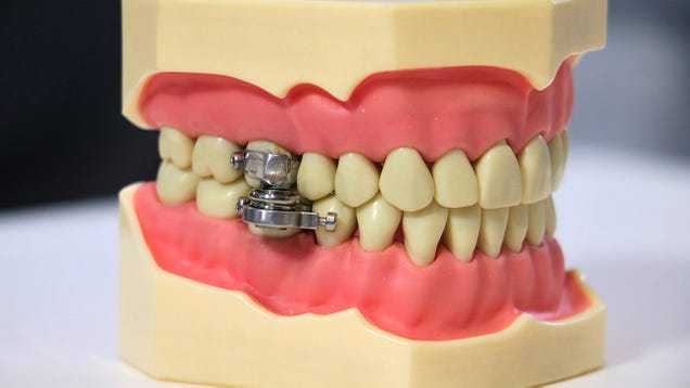 Terrifying Magnetic Mouth Clamp Pitched as a Rapid Weight Loss Tool [Updated]