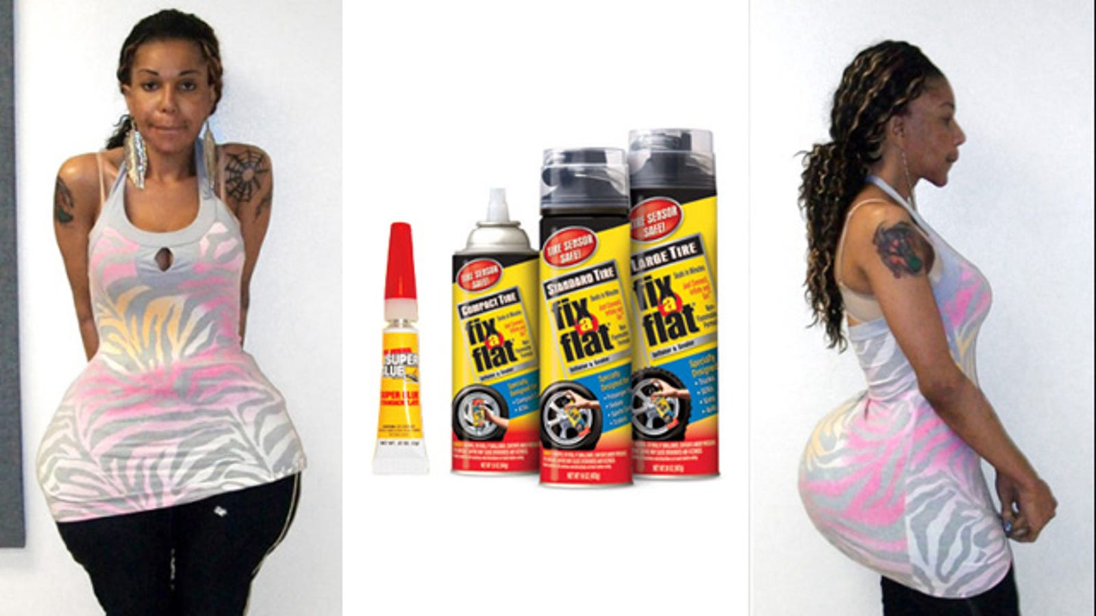 Woman Gets Fix-A-Flat Tire Sealant, Cement, Mineral Oil And Superglue Injected Into -1776
