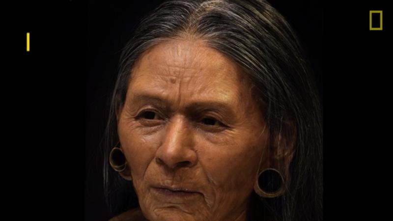 Facial paraylsis reconstruction florida
