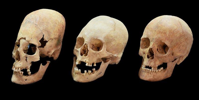 Varios de los cráneos hallados en Baviera con diferentes grados de deformación.