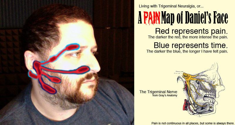 Illustration for article titled Infographic: A Pain Map of My Face