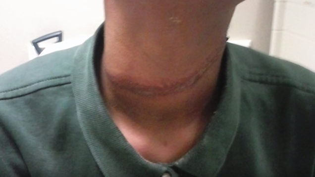 Family Alleges Students at a Texas School Wrapped a Rope Around Their Daughter s Neck