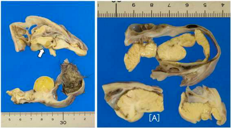 The teratoma contained bits of hair, skull, and surprisingly well-formed brain matter. (Image: Masayuki Shintaku et. al., 2017)