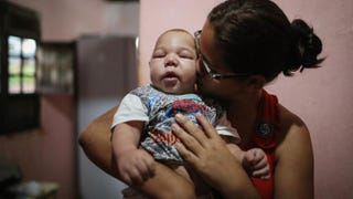 David Henrique Ferreira, 5 months, who was born with microcephaly, is kissed by his mother, Mylene Helena Ferreira, on Jan. 29, 2016, in Recife, Brazil. In the last four months, authorities have recorded around 4,000 cases in Brazil in which the mosquito-borne Zika virus may have led to microcephaly in infants. Mario Tama/Getty Images