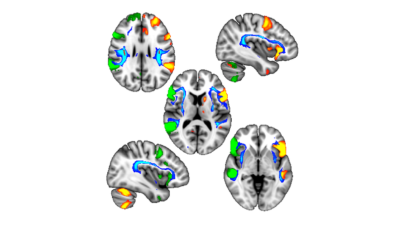 Regions of the brain influenced by handedness.