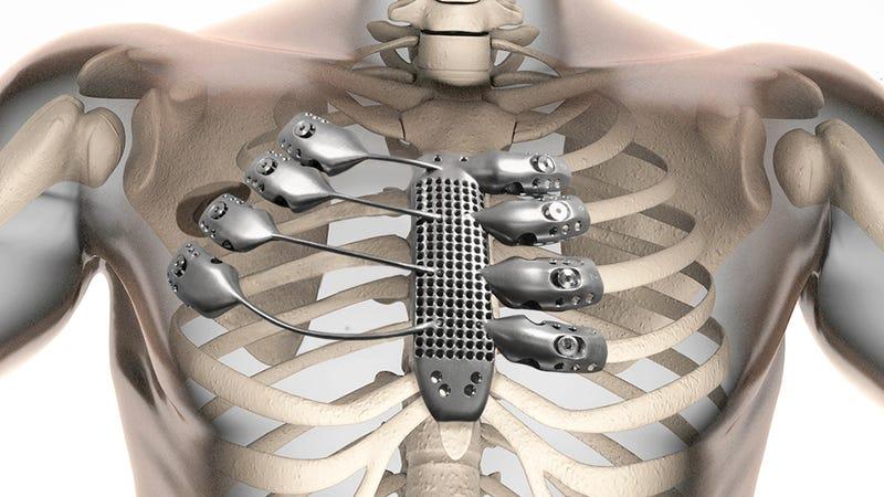 Un paciente recibe el primer trasplante de caja torácica de titanio hecho con impresión 3D