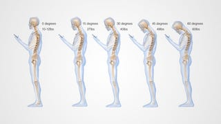 Illustration for article titled This Is What Looking Down at Your Cell Phone Does to Your Spine