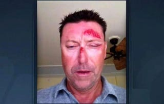 Illustration for article titled Witness: Robert Allenby Hurt Himself After A Trip To The Strip Club