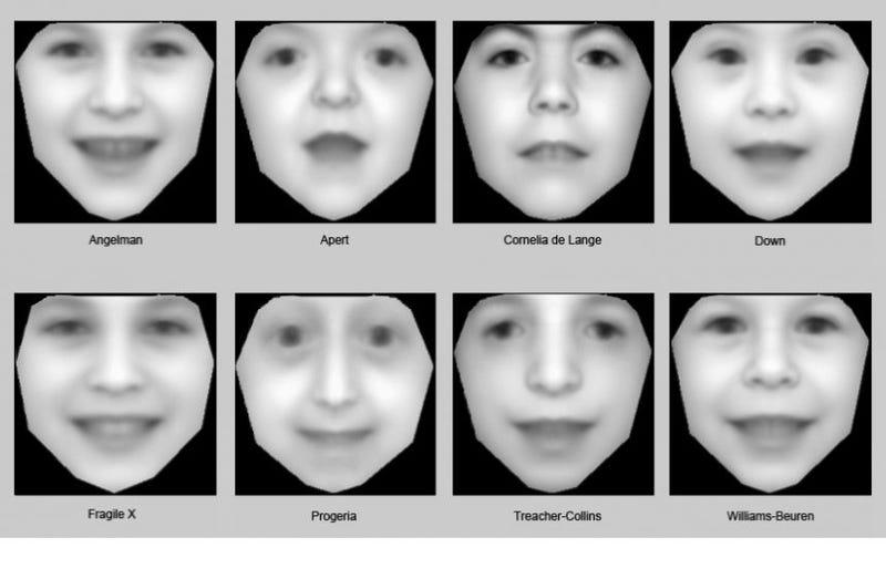 Illustration for article titled Nuevo software detecta trastornos genéticos mediante fotos de familia