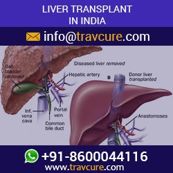 Illustration for article titled Liver Transplant in India is Matchless and Affordable