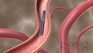 Illustration for article titled Proteus Motor Swims Through Bloodstream, Looks Pretty Much Like a Sperm