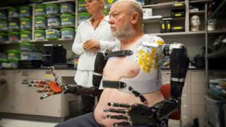 This Man Controls His Robotic Arms With His Mind